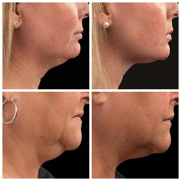Cool Sculpting for double chin